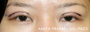 Asian Eyelid Plastic Surgery