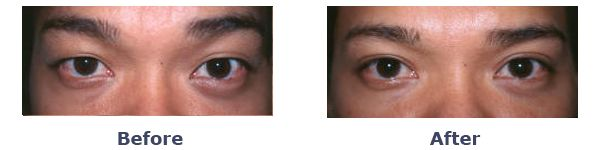Before And After Asian Double Eyelid Surgery