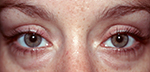 before blepharoplasty surgery