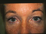 before upper eyelid surgery