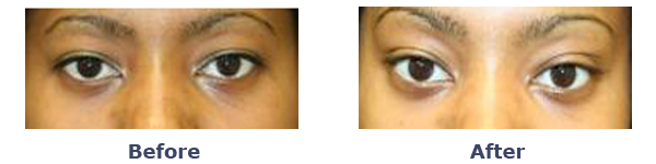 Puffy Eyes Almond Eyes before after