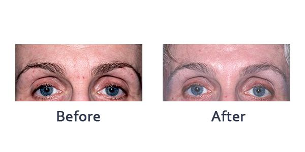 before and after botox or dysport treatment