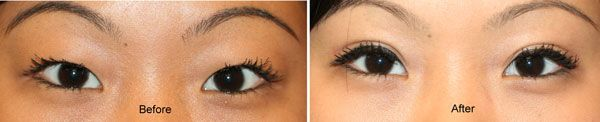 double eyelid before and after