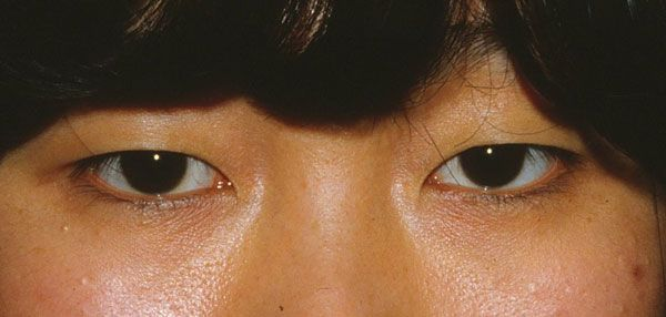 blepharoplasty in asian patient