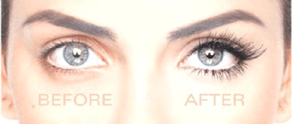 Eyelash Transplant before and after