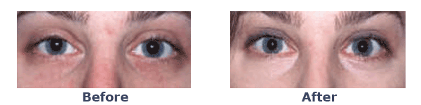 before-and-after Erbium Laser Skin Resurfacing
