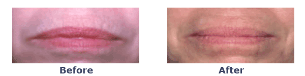 laser skin rejuvenation on lip lines