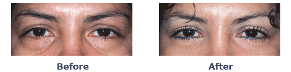 female lower eyelid surgery before and after