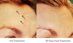 Single Pelleve Treatment For Forehead Wrinkles