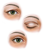 upper blepharoplasty illustration