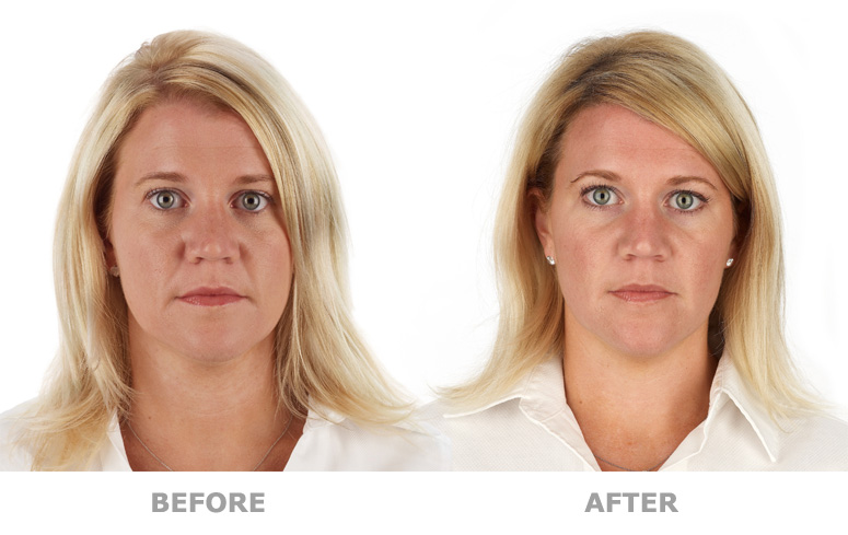 Platelet Rich Plasma Treatment, New York before and after