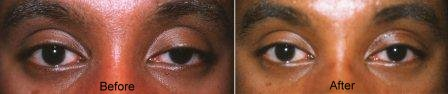 congenital ptosis surgery before and after
