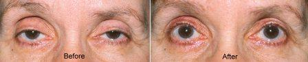 age related ptosis before and after ptosis surgery