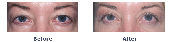 Upper Eyelid Surgery-Blepharoplasty Before and After