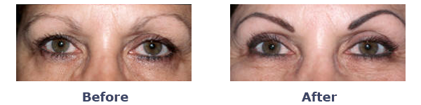 before and after upper eyelid crease