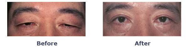 drooping eyelids before and after photos