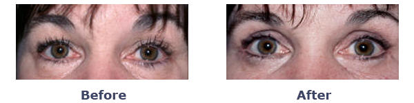 female before-and-after upper and lower eyelid surgery